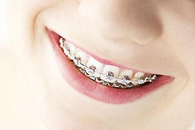 Apparecchio per i denti