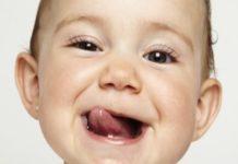 deglutizione atipica e terapia miofunzionle